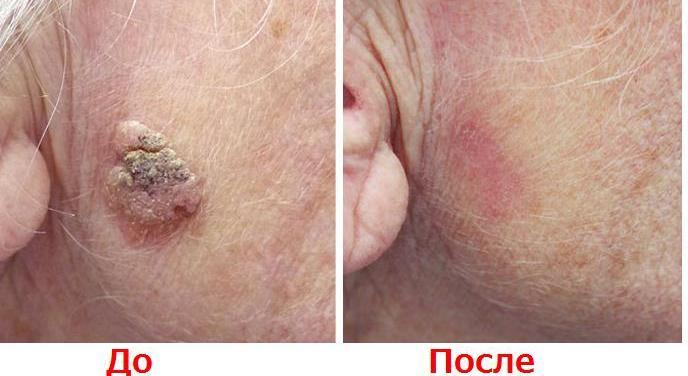 Что такое кератома и чем опасно это кожное заболевание?