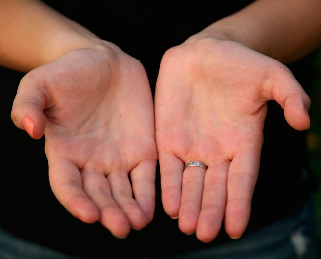 Рубцы на ладонях назвали симптомом смертельного заболевания