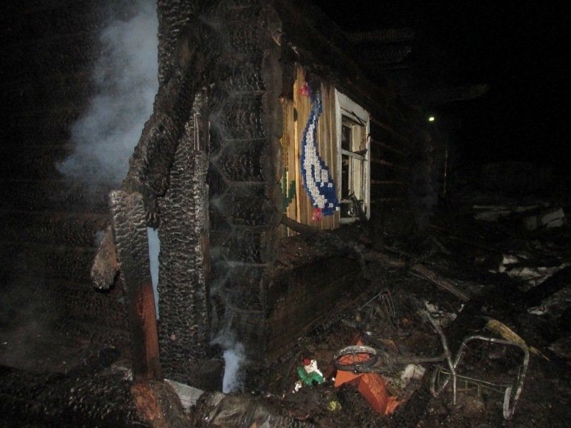 Чепчанин, спасаясь от пожара, получил серьезную травму