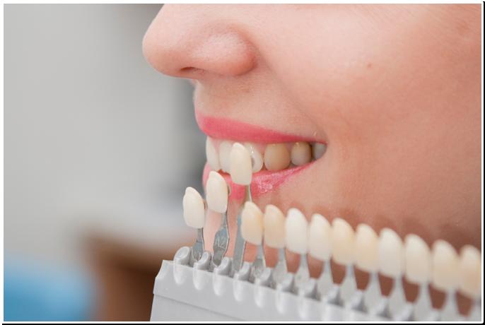 3 причины протезировать зубы в Кирове