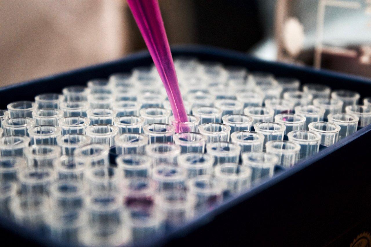 Специалисты назвали группу крови, наименее уязвимую к COVID-19