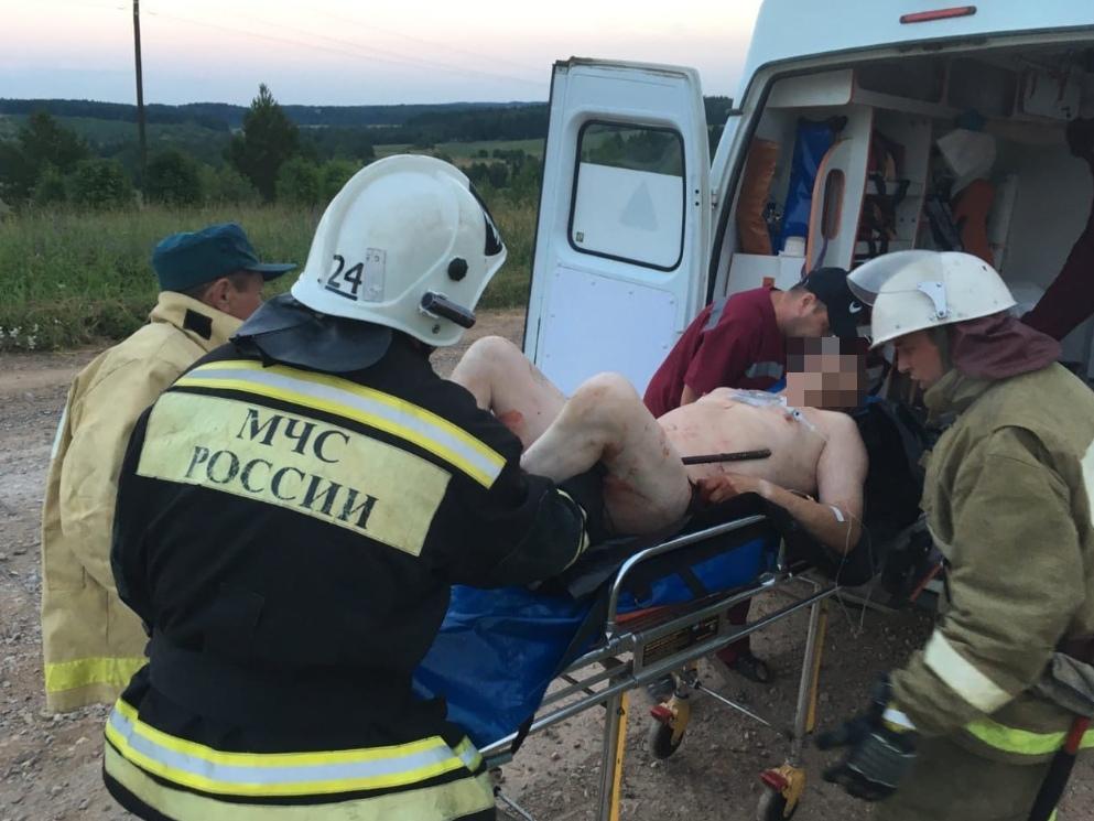 Врачи спасли чепчанина, ногу которого проткнуло 80-сантиметровой арматурой