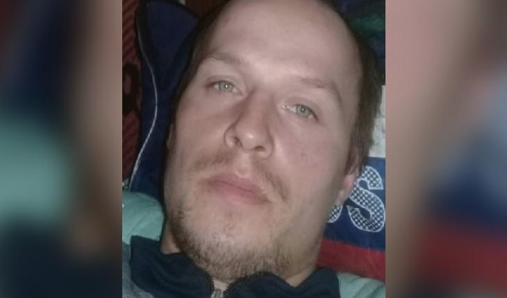 26-летнего мужчину с ожогом разыскивают в Кировской области